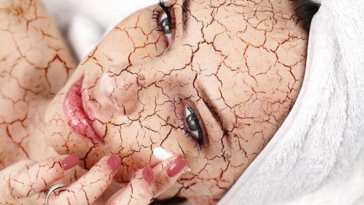 A száraz bőr 6 alig ismert oka, ami eszedbe sem jutna – Nemcsak a hideg, hormonproblémából is adódhat